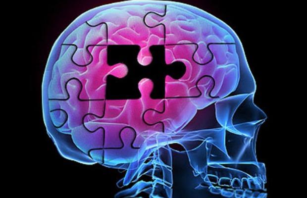 alzheimer hueco cerebro 620400