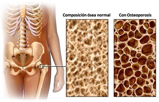 osteoporosis_porosidad_hueso 620+400