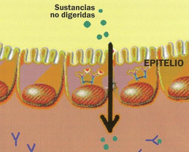 permeabilidad intestinal 620+500